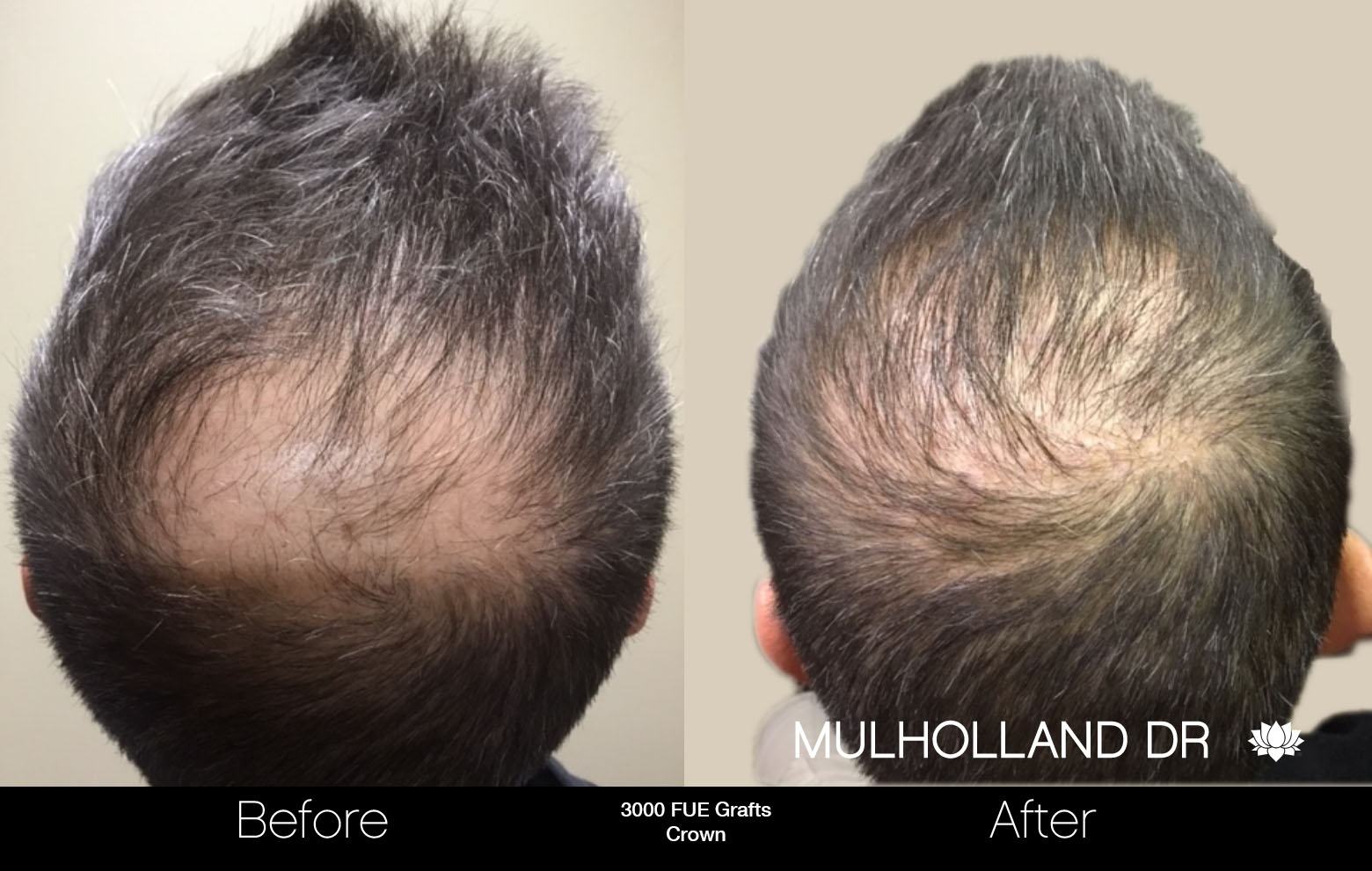 FUE Hair Male - Before and After Gallery – Photo 82