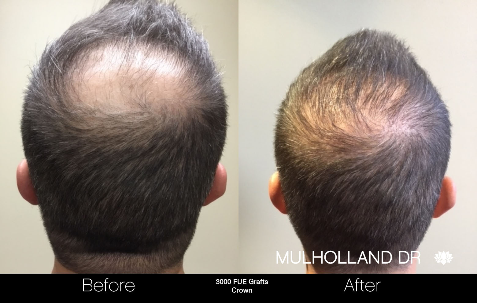 FUE Hair Male - Before and After Gallery – Photo 83