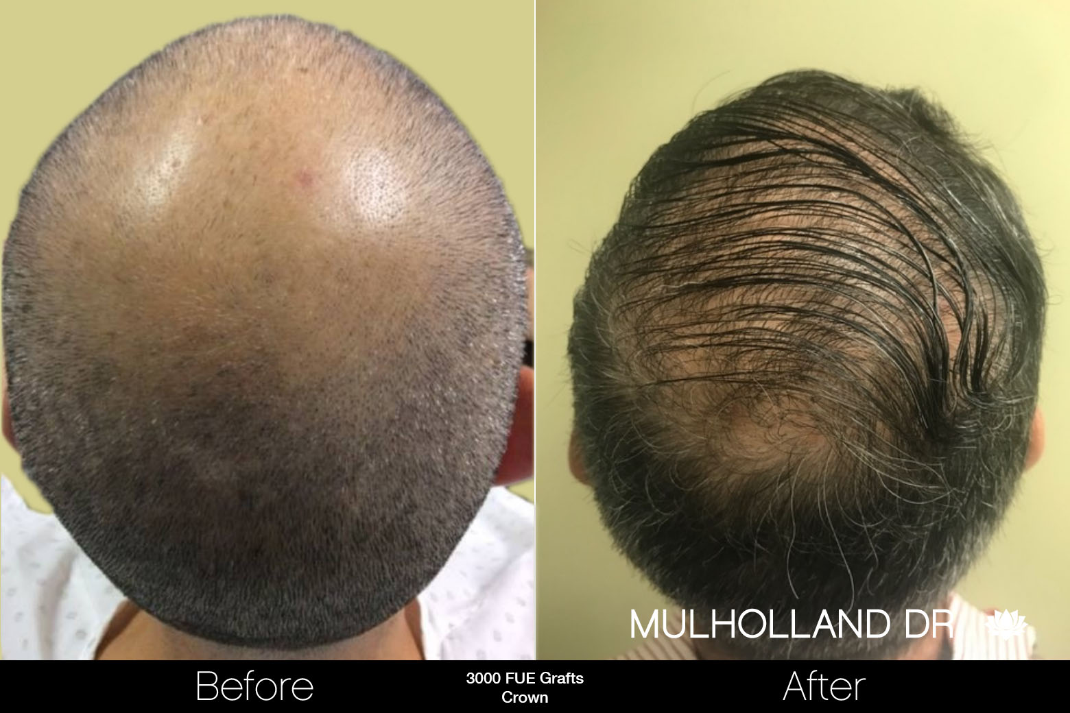 FUE Hair Male - Before and After Gallery – Photo 85