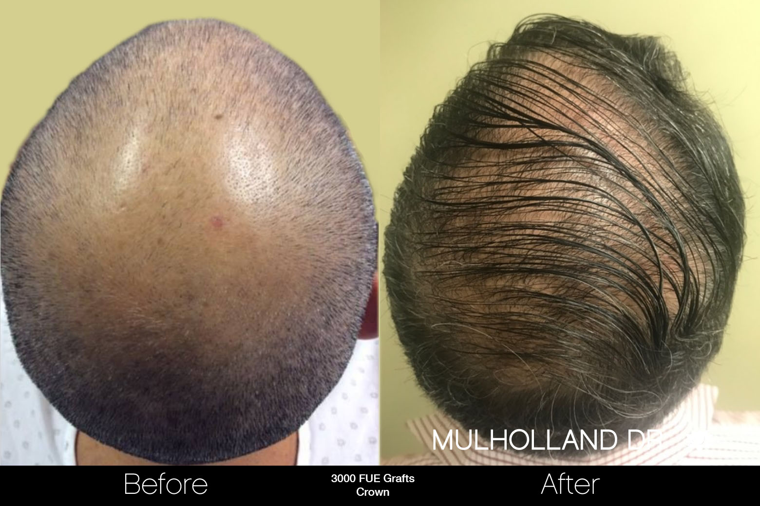 FUE Hair Male - Before and After Gallery – Photo 86