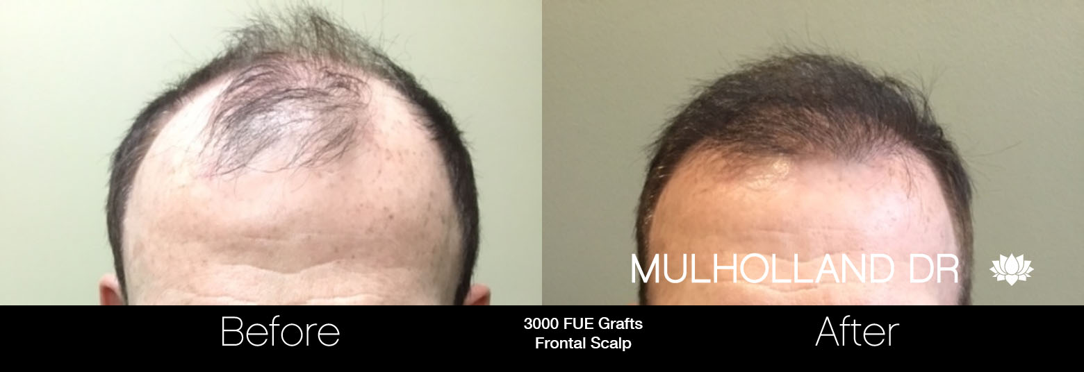 FUE Hair Male - Before and After Gallery – Photo 87