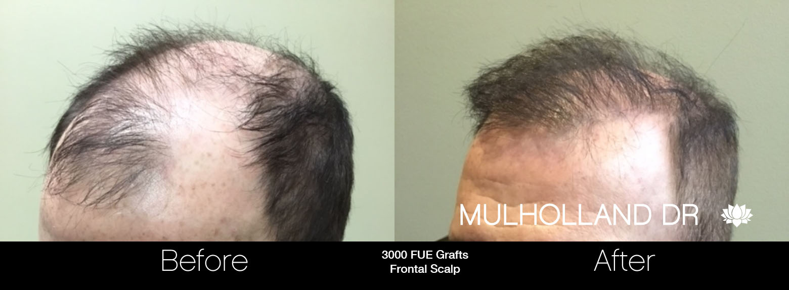 FUE Hair Male - Before and After Gallery – Photo 88