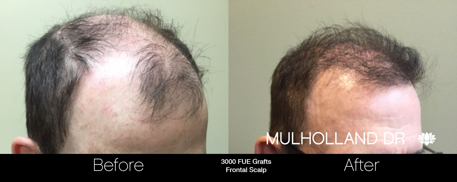 FUE Hair Male - Before and After Gallery – Photo 89