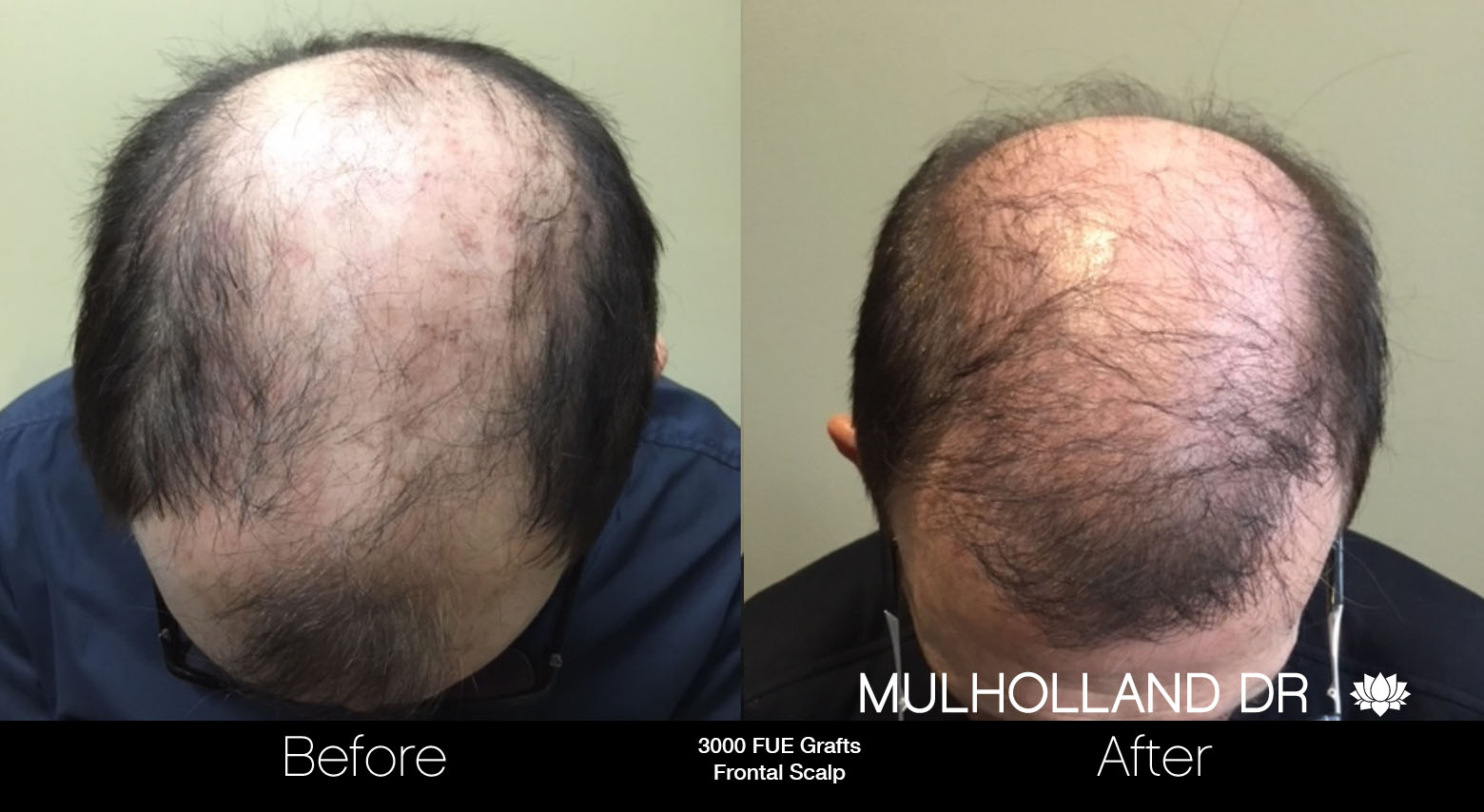 FUE Hair Male - Before and After Gallery – Photo 90