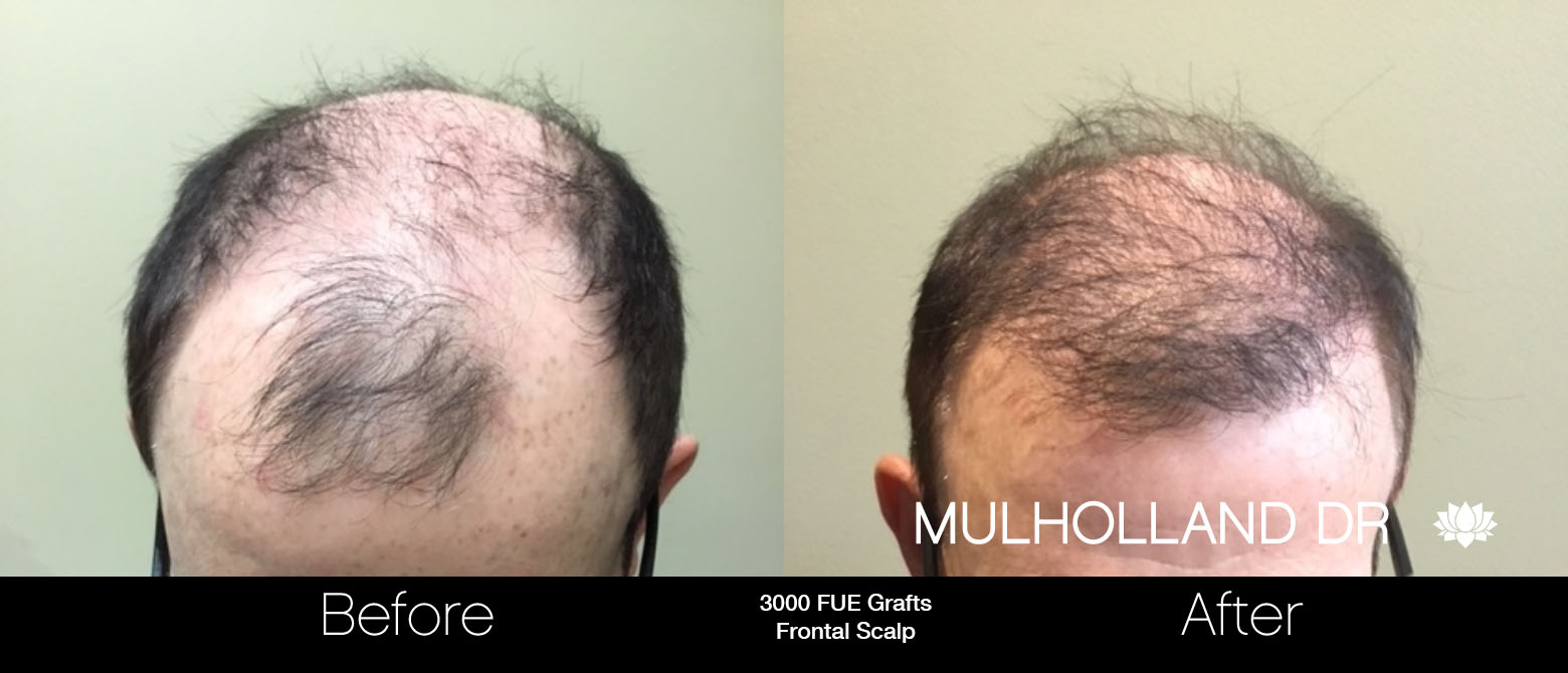 FUE Hair Male - Before and After Gallery – Photo 91
