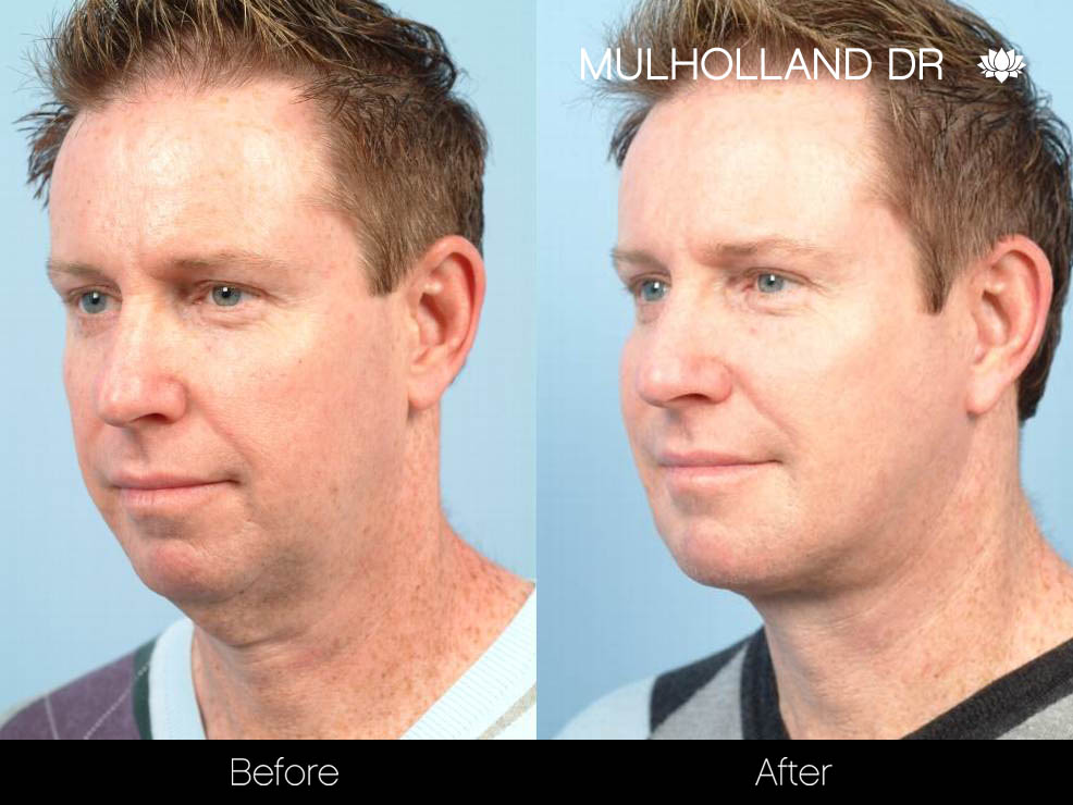 Liposuction - Before and After Gallery – Photo 97