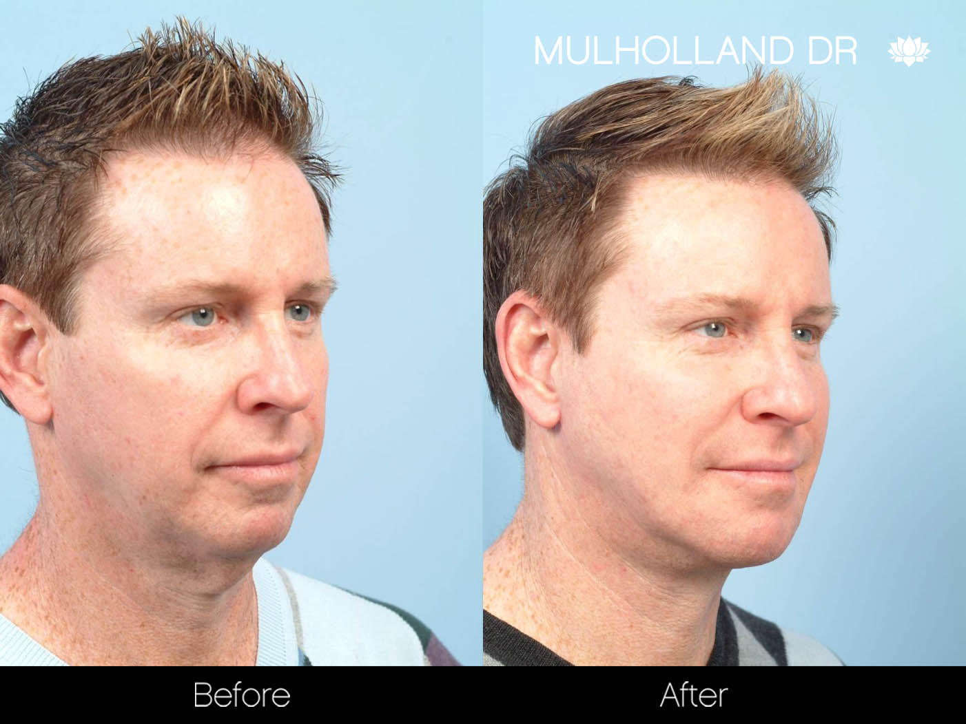 Liposuction - Before and After Gallery – Photo 98