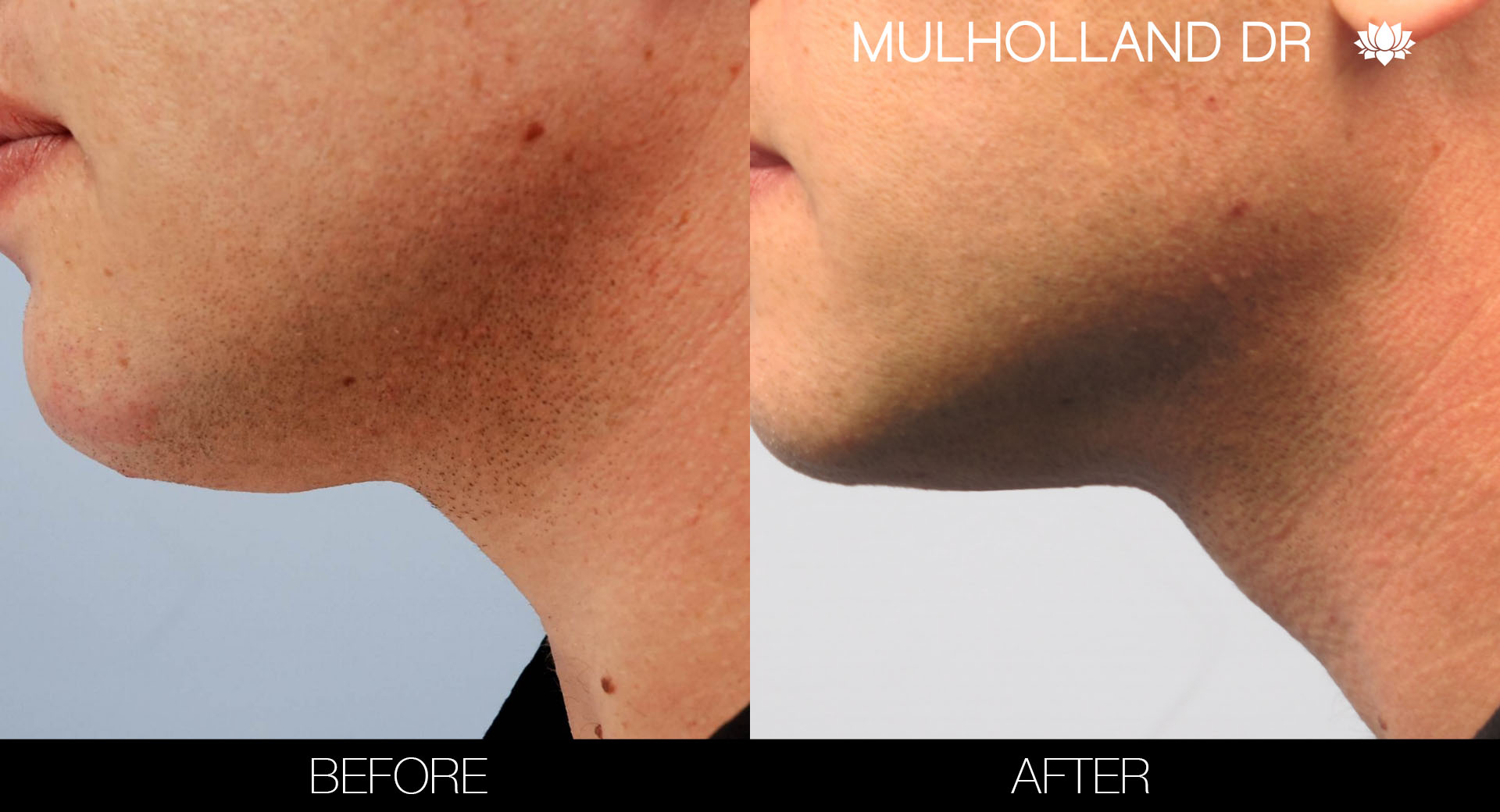 Liposuction - Before and After Gallery – Photo 104