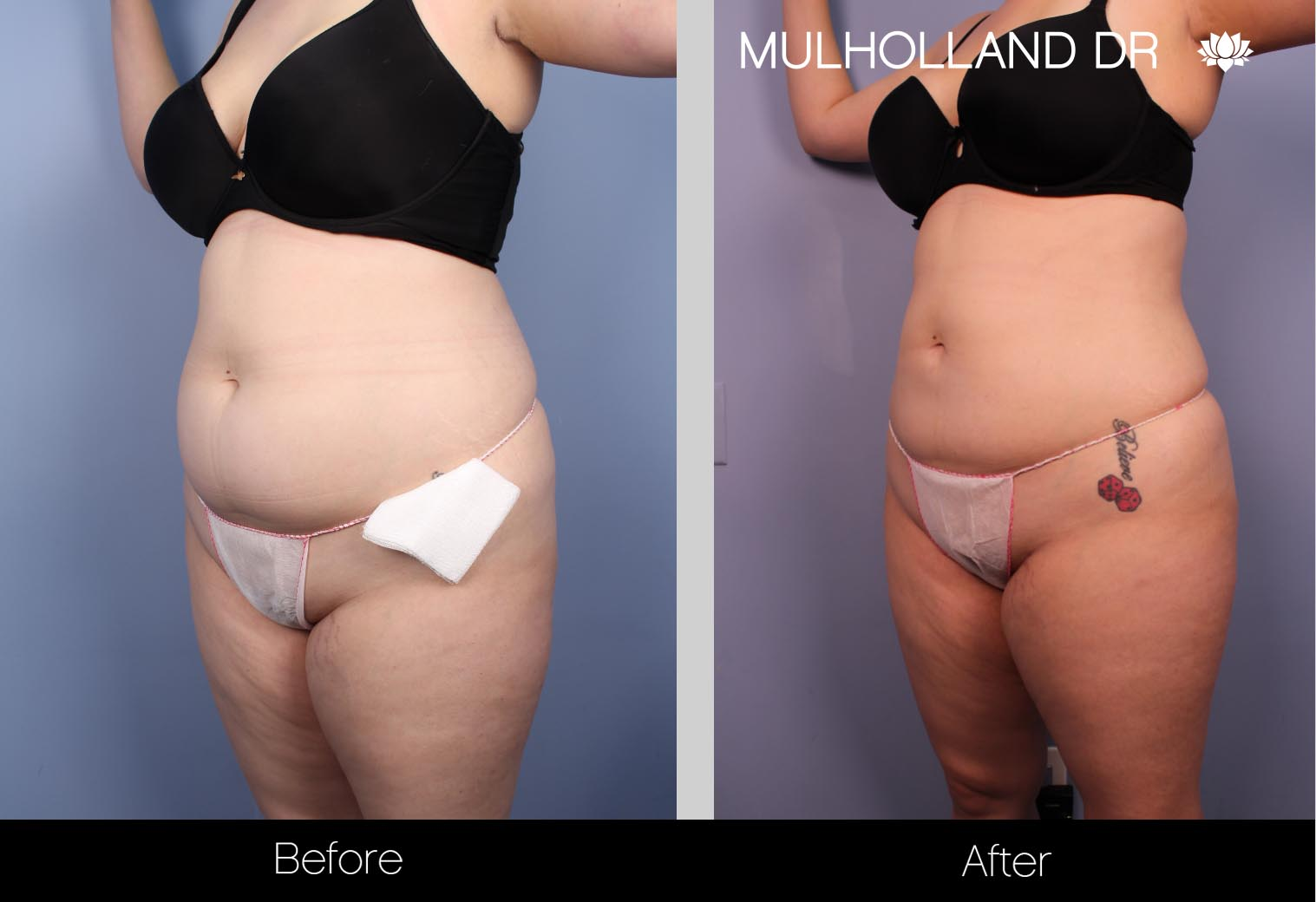 BodyTite Liposuction - Before and After Gallery – Photo 23