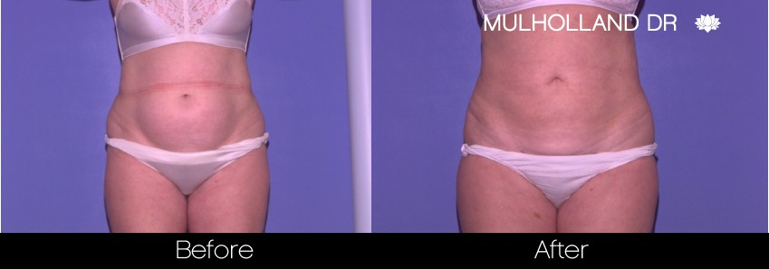 BodyTite Liposuction - Before and After Gallery – Photo 27