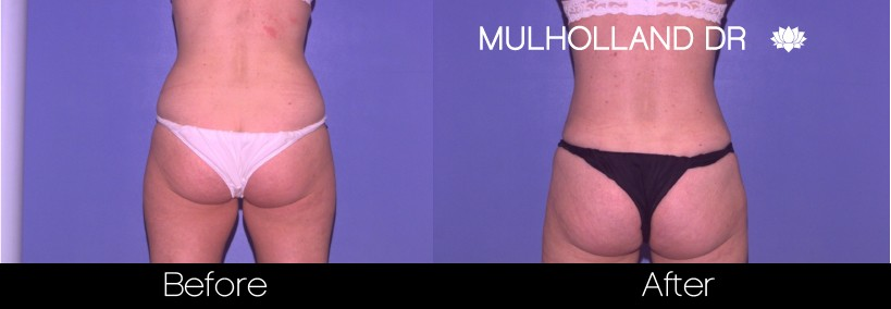 BodyTite Liposuction - Before and After Gallery – Photo 17