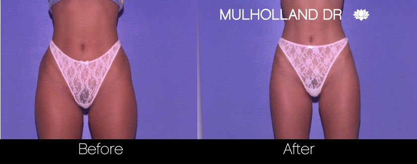 BodyTite Liposuction - Before and After Gallery – Photo 37