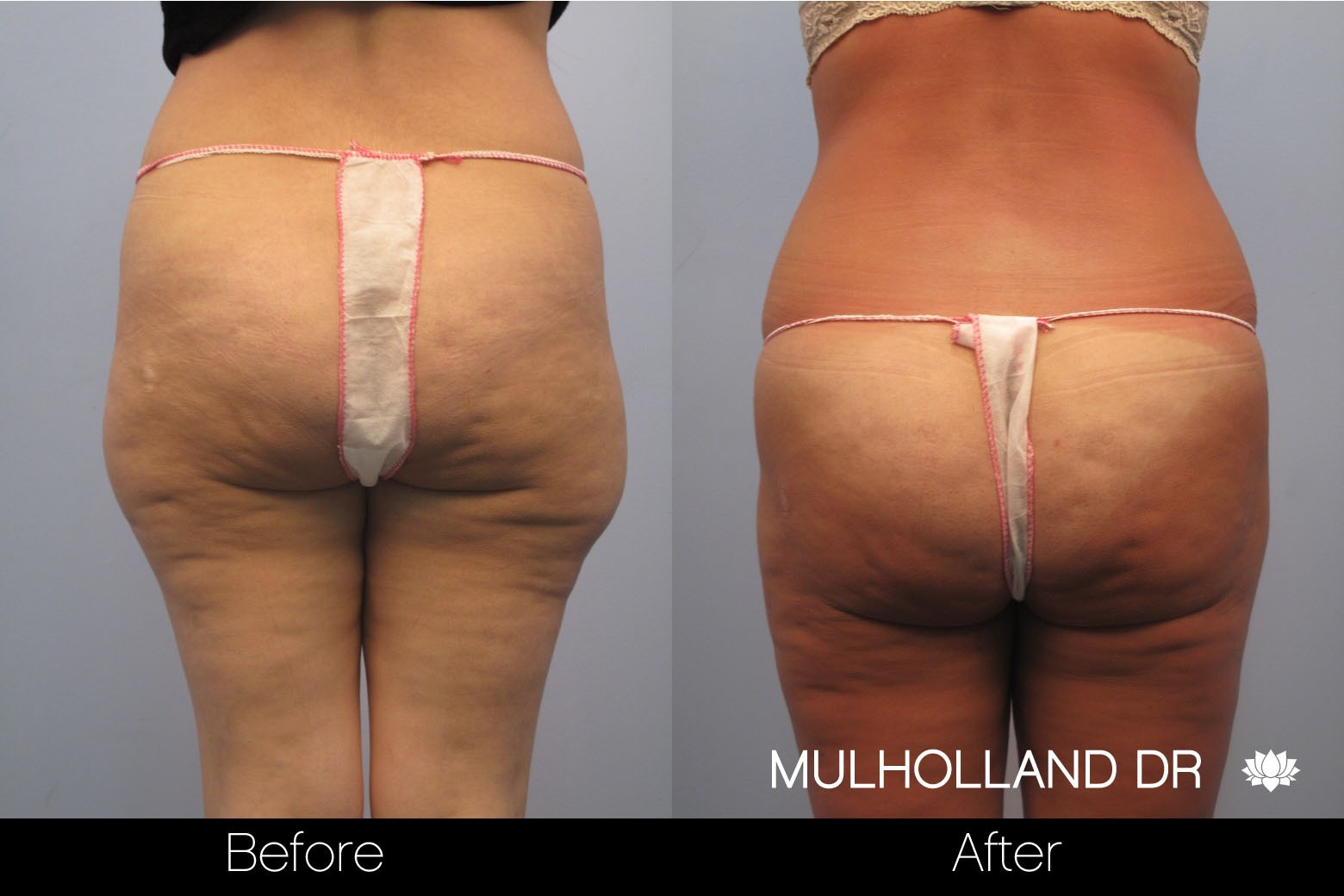 Liposuction - Before and After Gallery – Photo 49