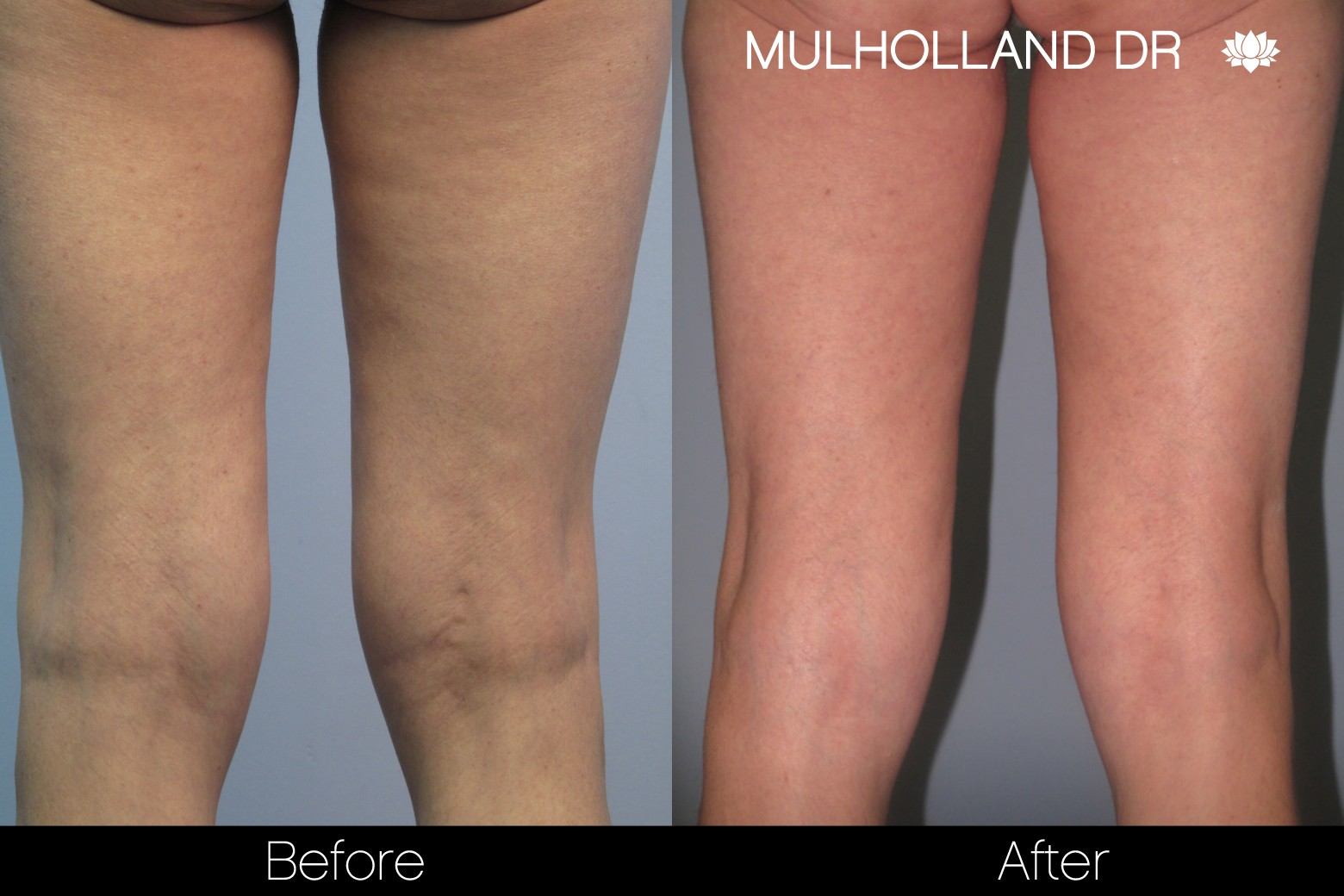 BodyTite Liposuction - Before and After Gallery – Photo 63