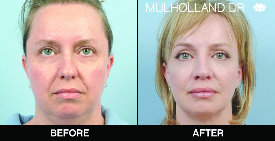 BodyTite Liposuction - Before and After Gallery – Photo 66