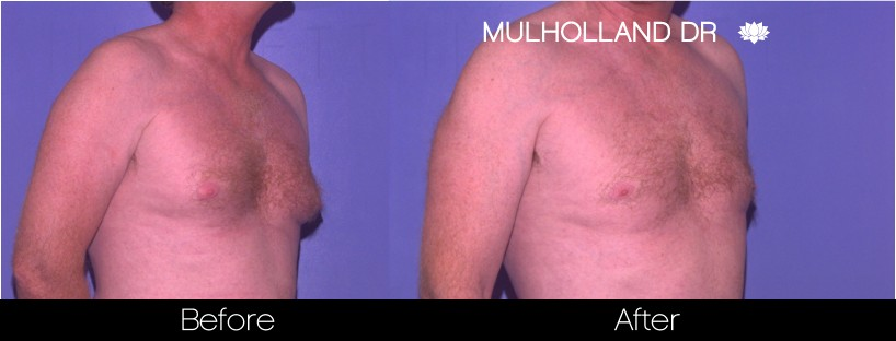 Liposuction - Before and After Gallery – Photo 71