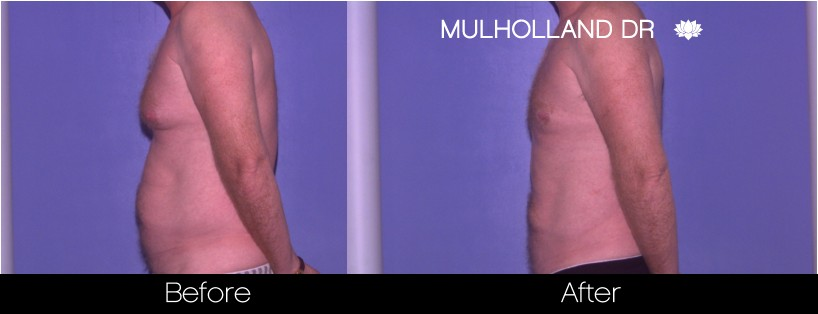 Liposuction - Before and After Gallery – Photo 72