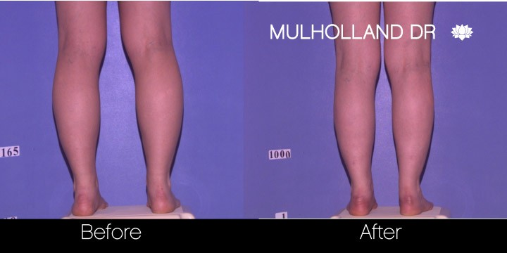 Liposuction - Before and After Gallery – Photo 84