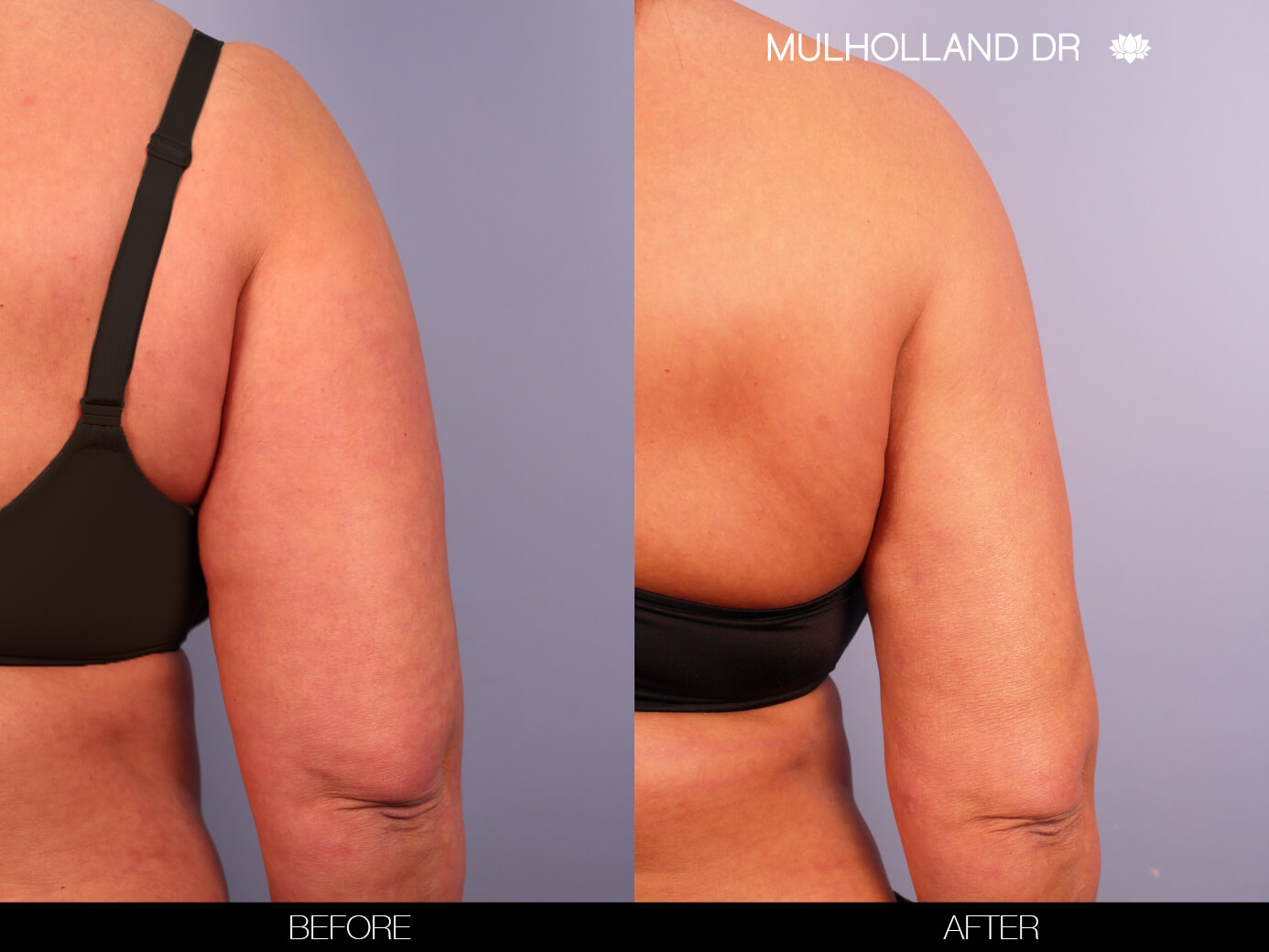 Arm Lift - Before and After Gallery – Photo 10