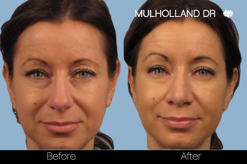 Rhinoplasty - Before and After Gallery – Photo 10