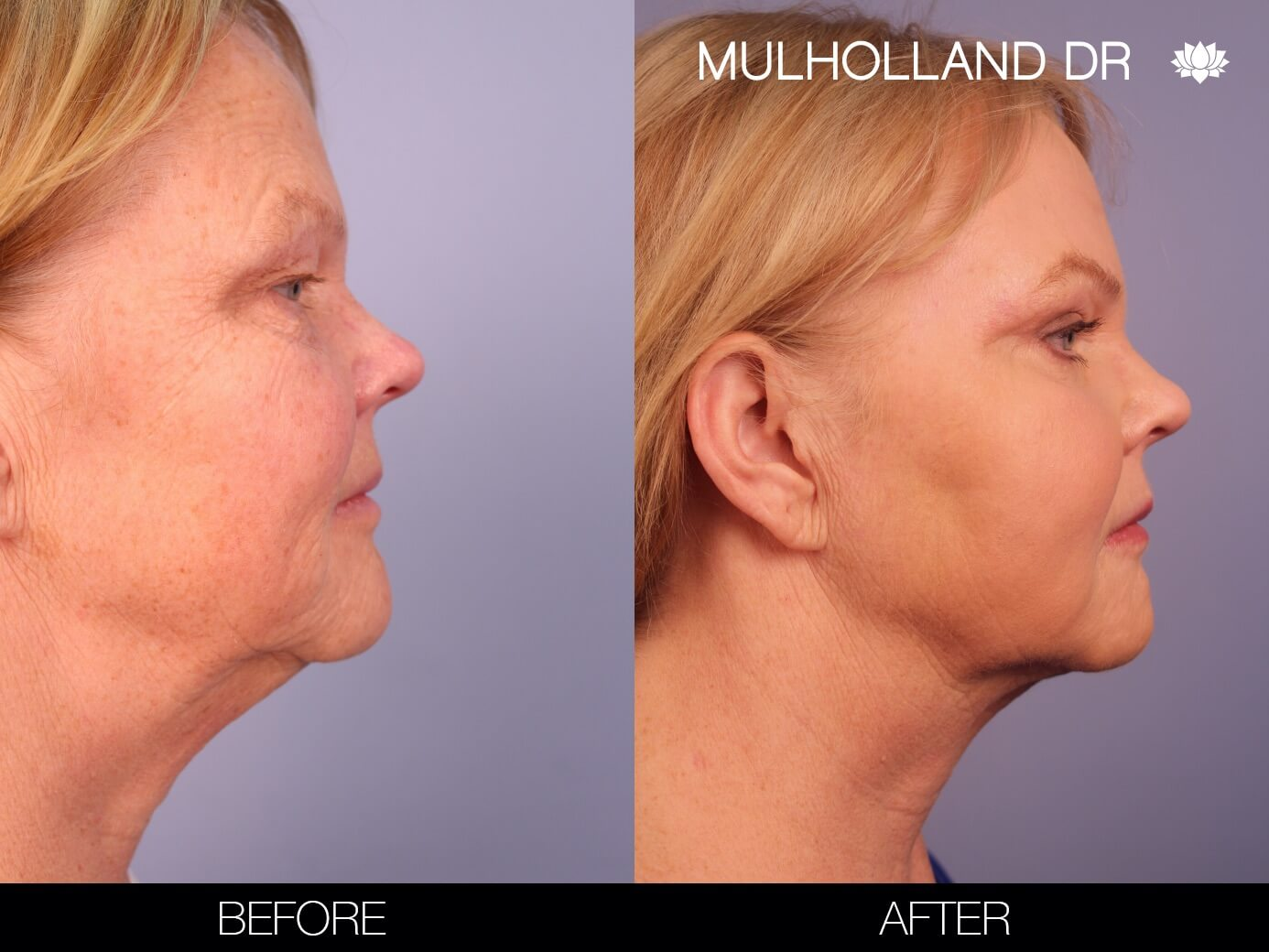 ThreadLift - Before and After Gallery – Photo 9