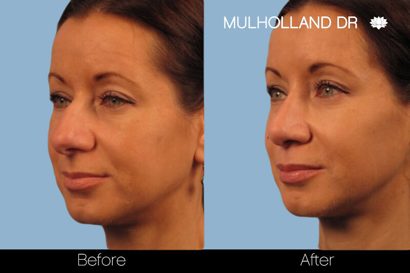 Rhinoplasty - Before and After Gallery – Photo 12