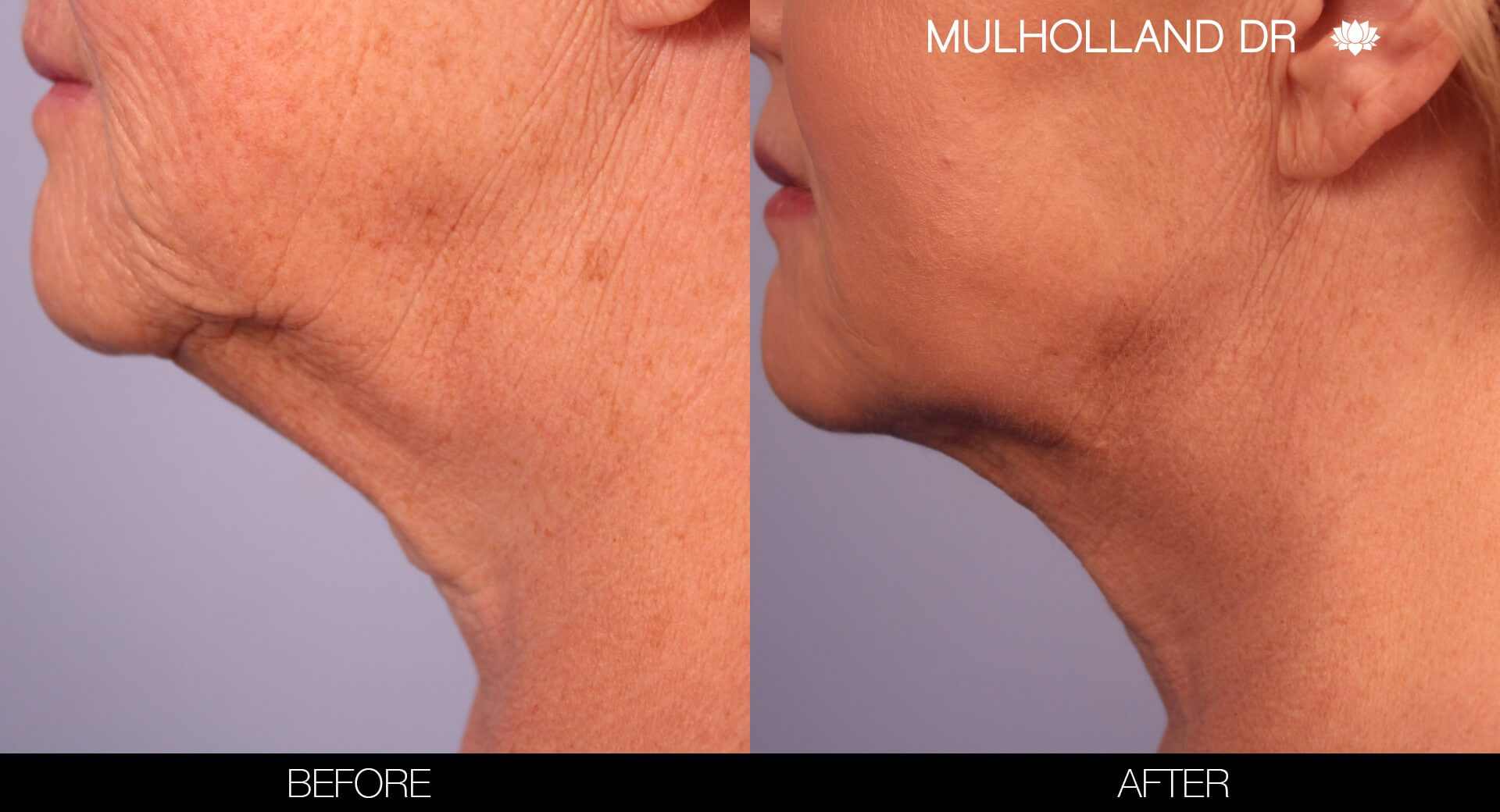 ThreadLift - Before and After Gallery – Photo 12