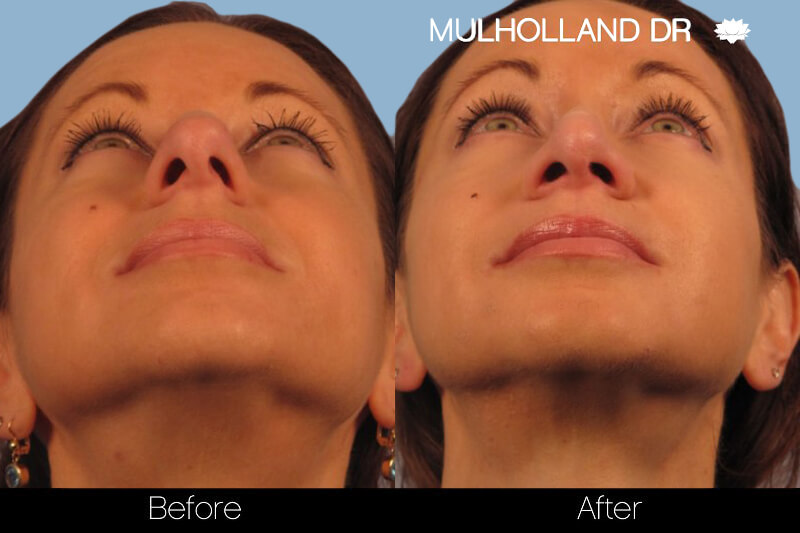 Rhinoplasty - Before and After Gallery – Photo 15
