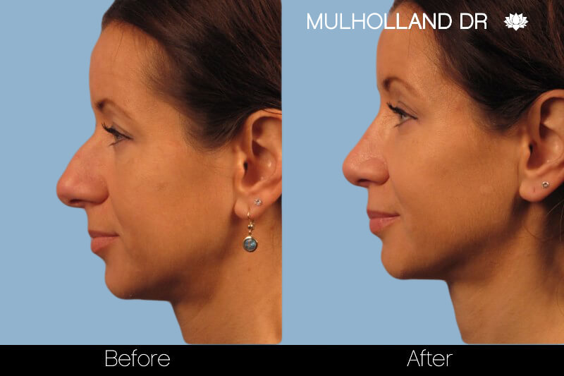Rhinoplasty - Before and After Gallery – Photo 16