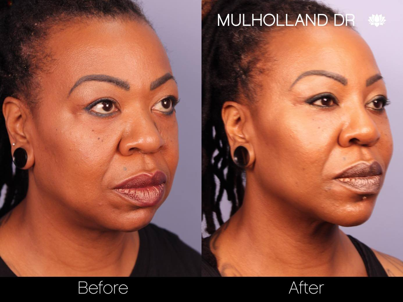 ThreadLift - Before and After Gallery – Photo 16