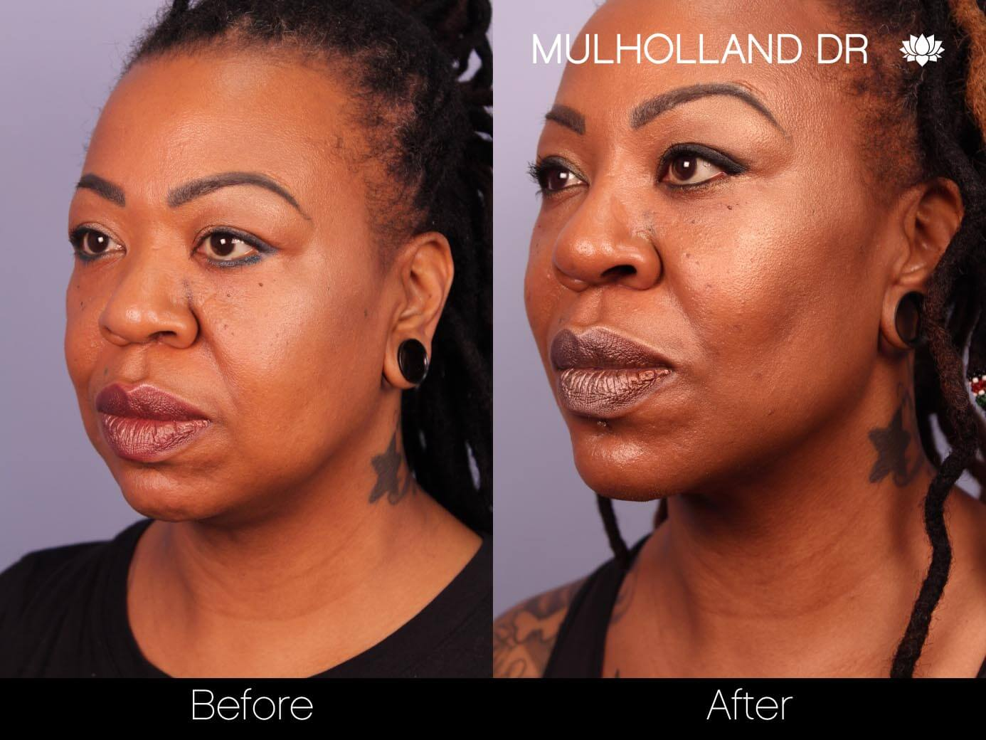 ThreadLift - Before and After Gallery – Photo 18