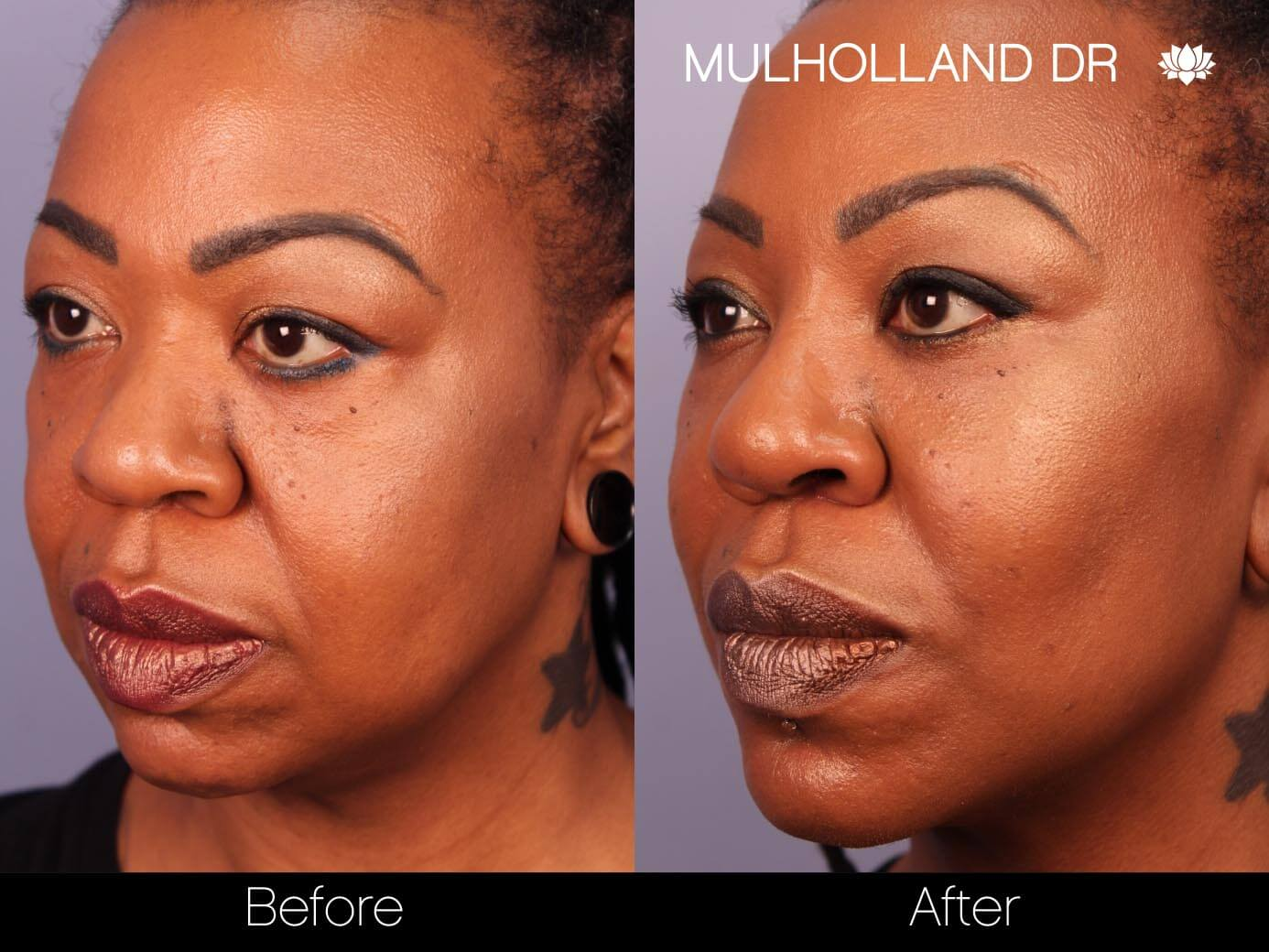 ThreadLift - Before and After Gallery – Photo 19