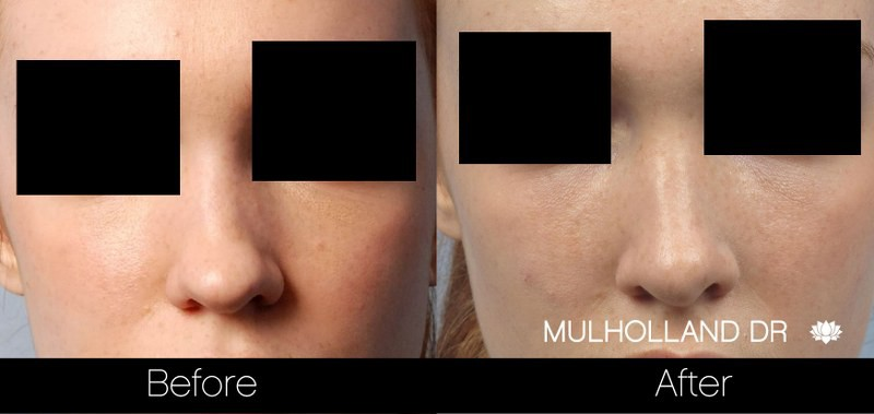 Rhinoplasty - Before and After Gallery – Photo 24
