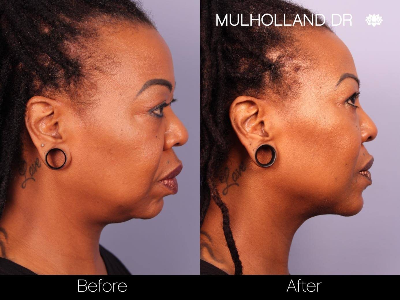 ThreadLift - Before and After Gallery – Photo 20