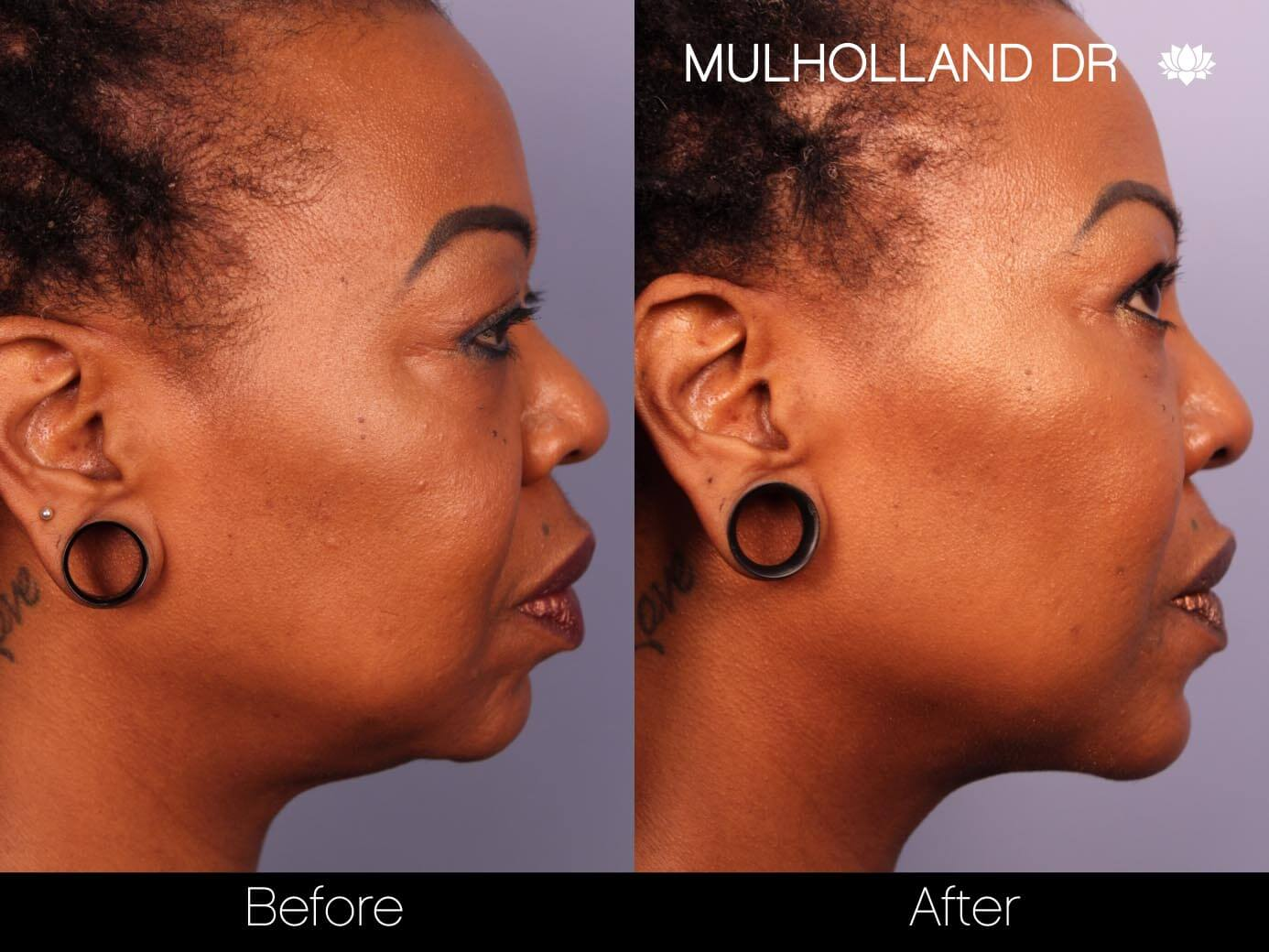 ThreadLift - Before and After Gallery – Photo 21