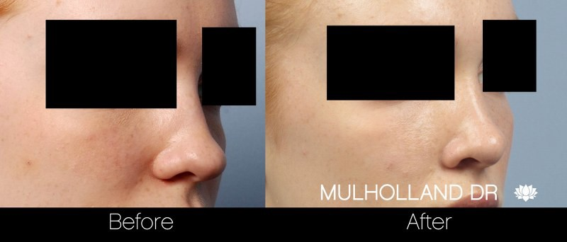 Rhinoplasty - Before and After Gallery – Photo 22