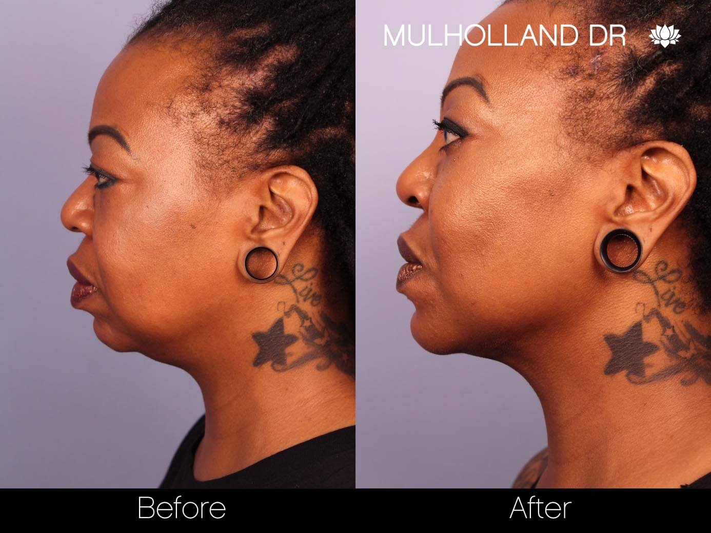 ThreadLift - Before and After Gallery – Photo 22