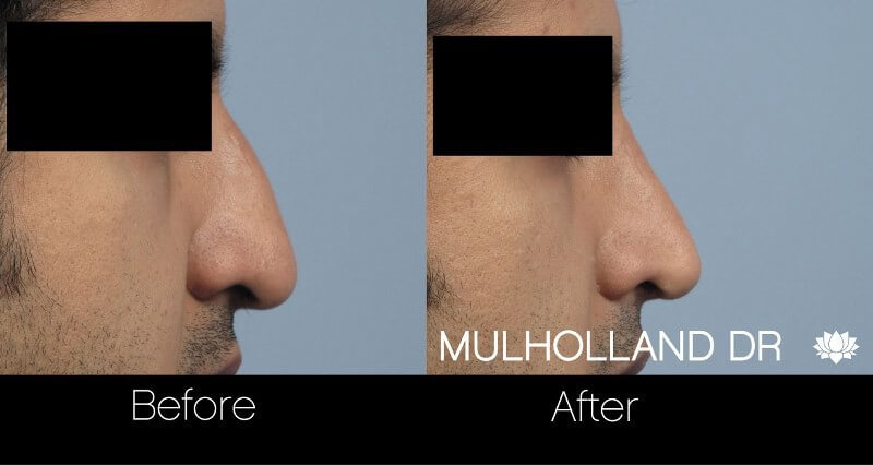 Rhinoplasty - Before and After Gallery – Photo 25