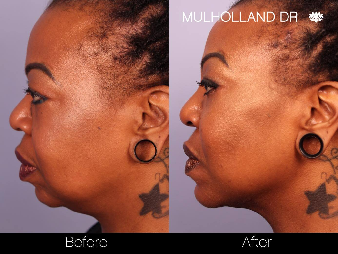 ThreadLift - Before and After Gallery – Photo 23