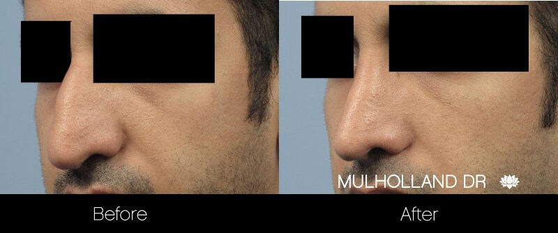 Rhinoplasty - Before and After Gallery – Photo 26