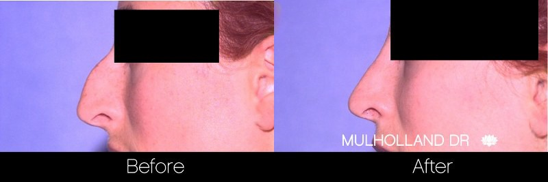 Rhinoplasty - Before and After Gallery – Photo 27