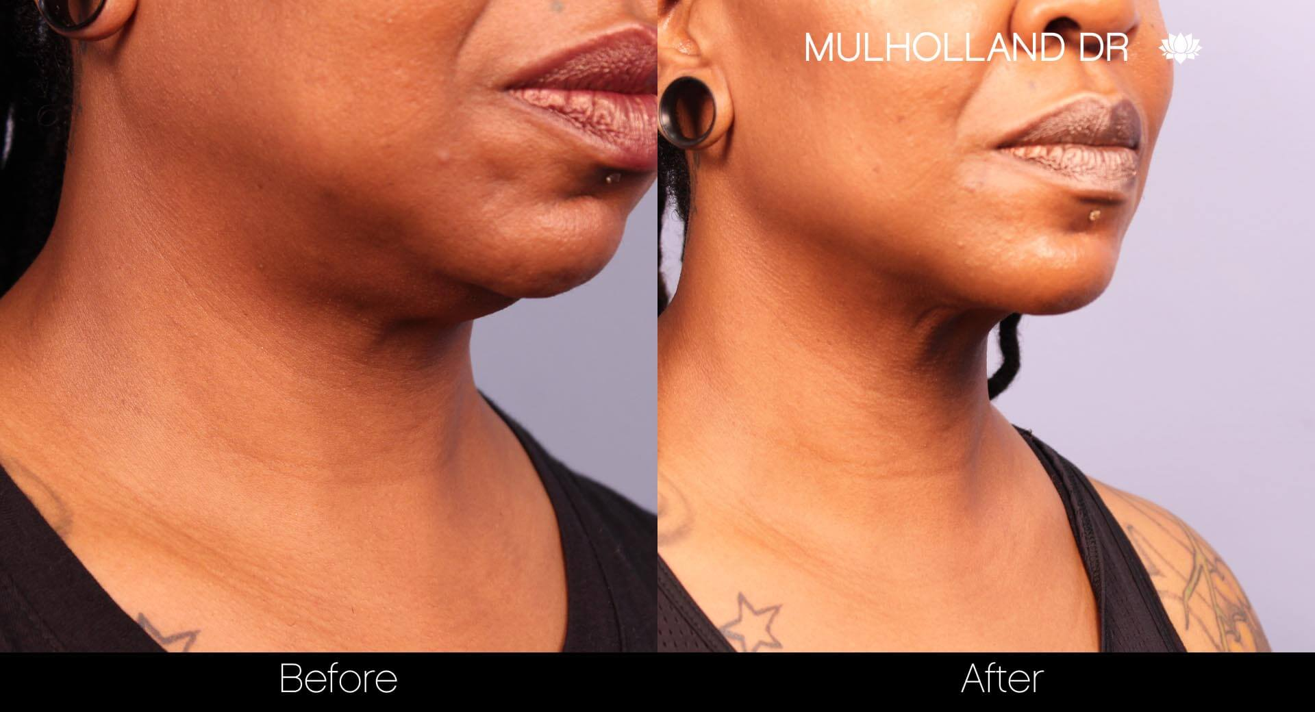 ThreadLift - Before and After Gallery – Photo 25