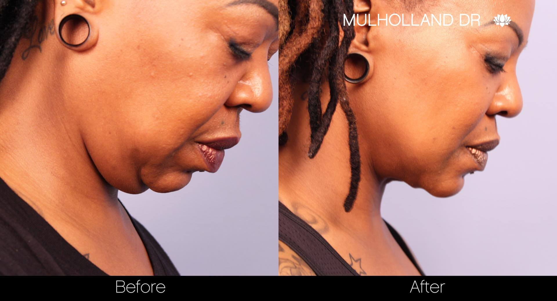 ThreadLift - Before and After Gallery – Photo 27