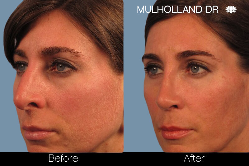 Rhinoplasty - Before and After Gallery – Photo 2