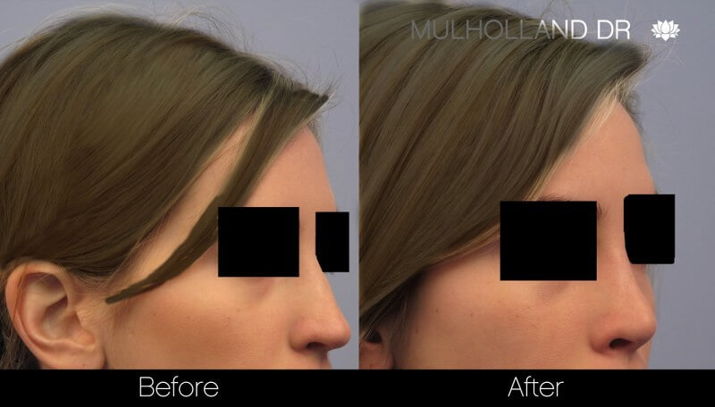 Rhinoplasty - Before and After Gallery – Photo 30