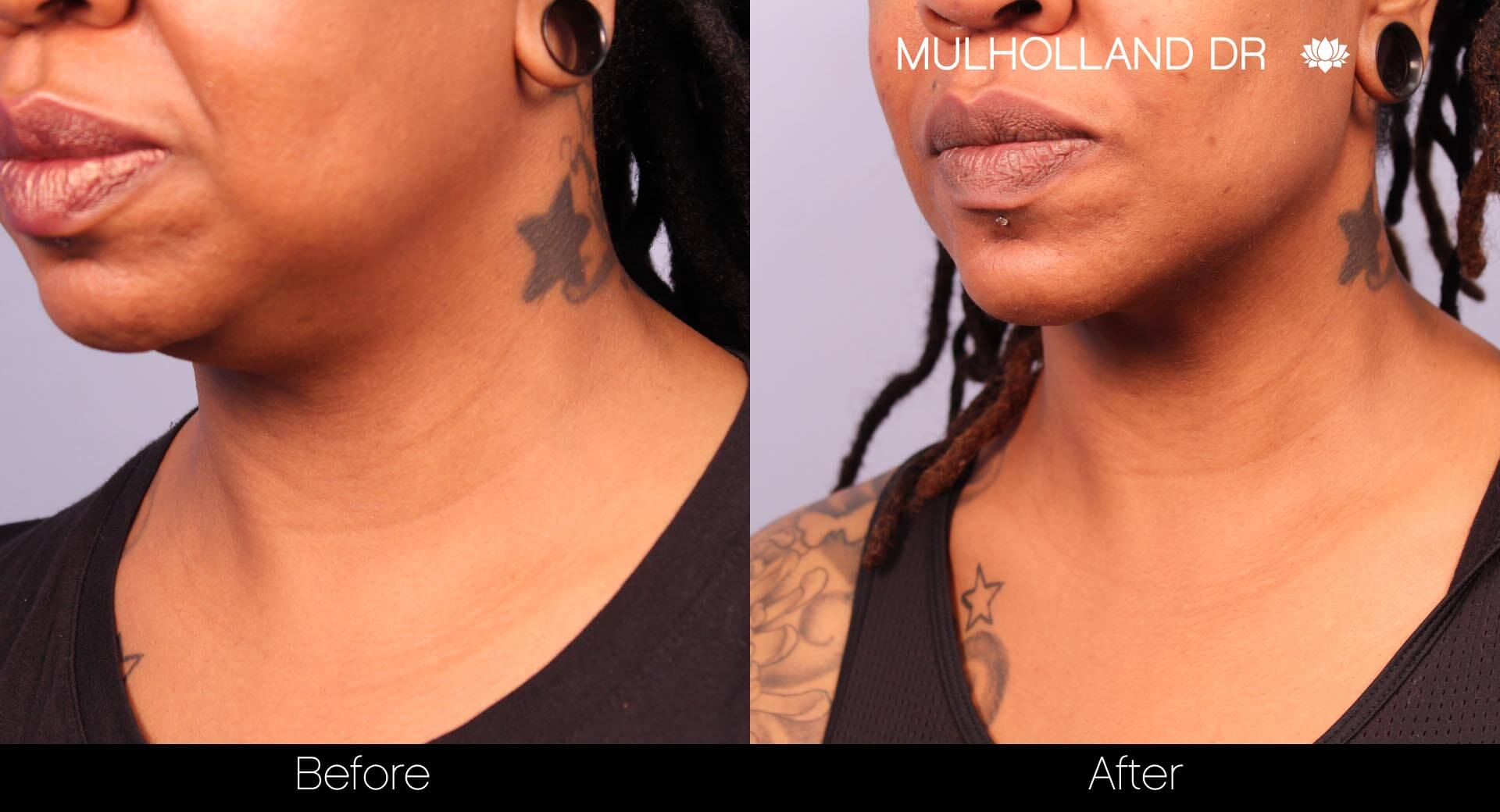 ThreadLift - Before and After Gallery – Photo 28