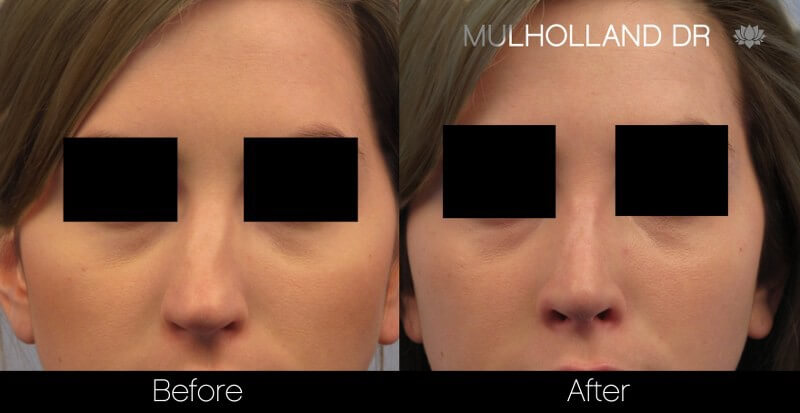 Rhinoplasty - Before and After Gallery – Photo 31
