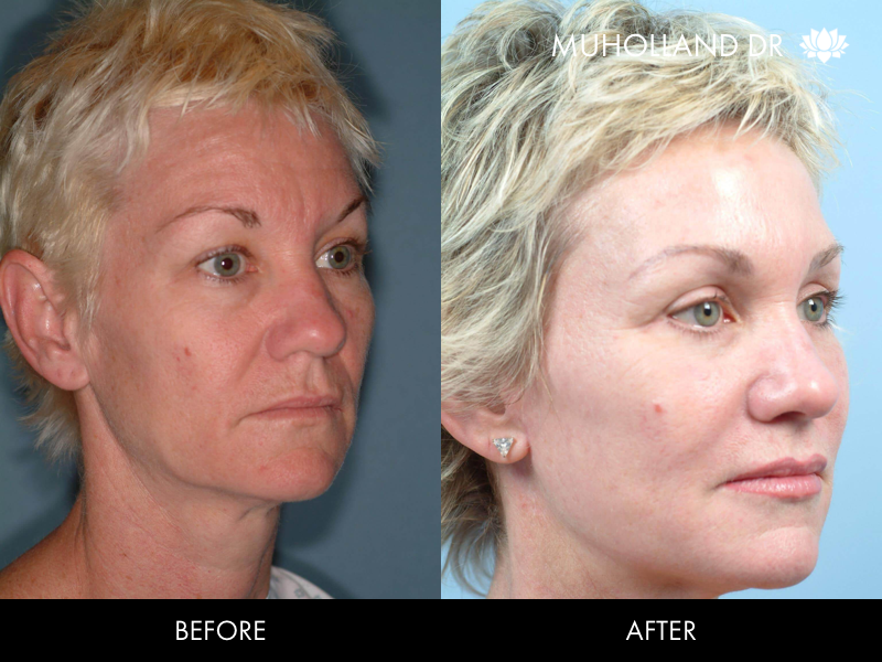 ThreadLift - Before and After Gallery – Photo 32
