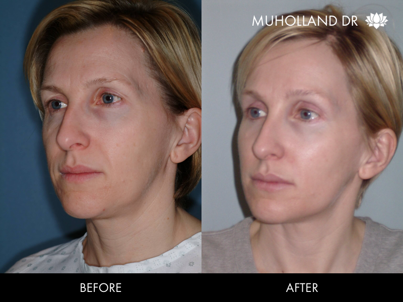 ThreadLift - Before and After Gallery – Photo 34