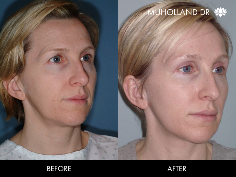 ThreadLift - Before and After Gallery – Photo 35